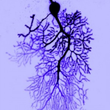 Purkinje Neuron with dendrites in blue can my brain get too full Image Credit: Dana Simmons, Christian Hansel Lab, The University of Chicago