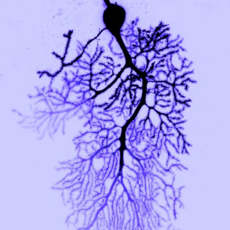 Purkinje Neuron with dendrites in blue Image Credit: Dana Simmons, Christian Hansel Lab, The University of Chicago