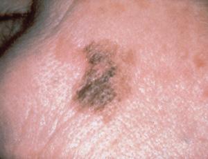 lentigo maligna melanoma