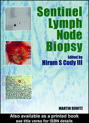 Sentinel lymph node biopsy