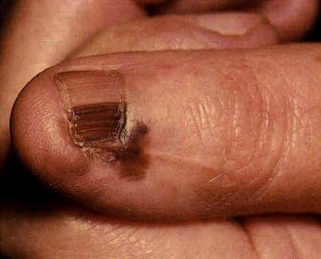 Melanoma ungueale