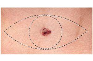 melanoma surgery