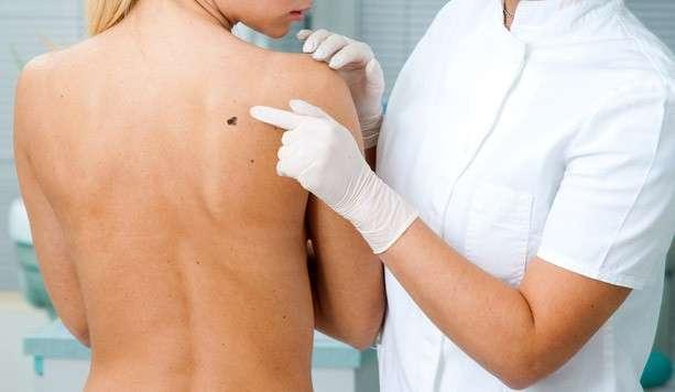 Tipi comuni di melanoma