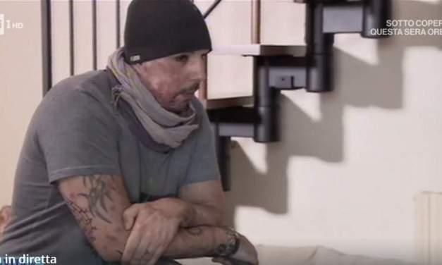 William Pezzullo: Sfregiato con l'acido dall'ex | Il caso