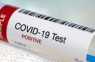 In Abruzzo sono 351 i nuovi casi positivi al Covid. 15 i decessi: +7 nel Chietino