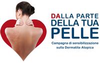 Dermatite atopica dell'adulto, domani consulti dermatologici gratuiti a Chieti