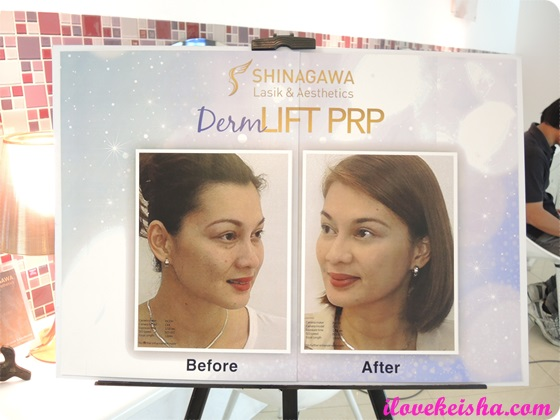 Shinagawa DermLift PRP+