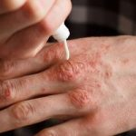 Sul web crema 'miracolosa' per cura della psoriasi e di dermatiti, ma è illegale