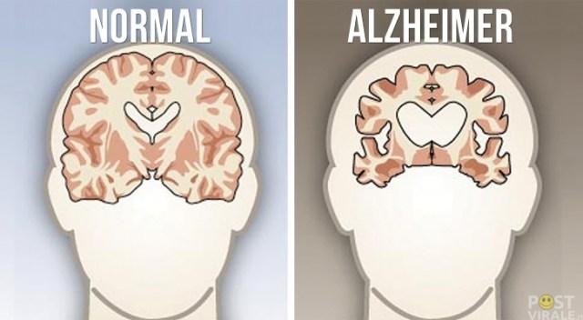 """La Julianne Moore di """"Still Alice"""" lotta contro il morbo di Alzheimer"""