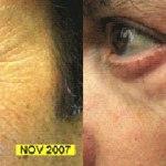 LEDs como tratamiento antiarrugas