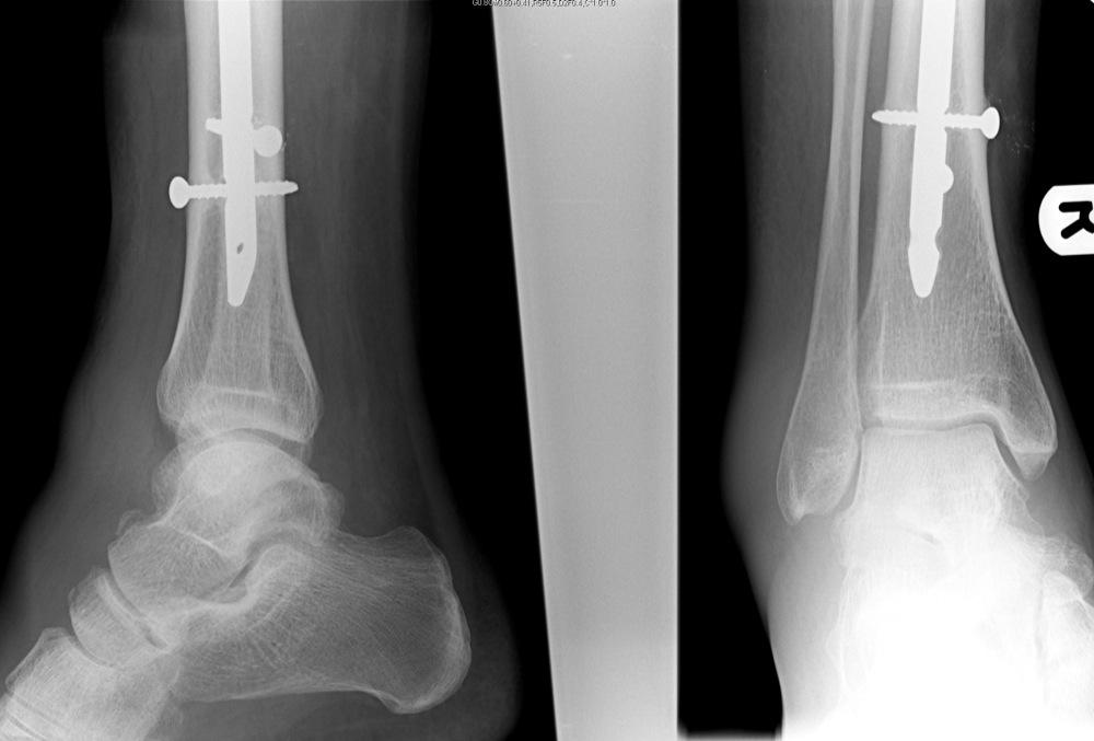 Foot Cuboid Bone Avulsion Fracture
