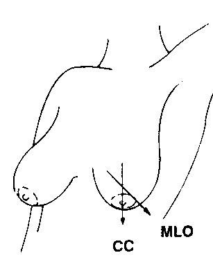 Cranio-caudal & mediolateral oblique view