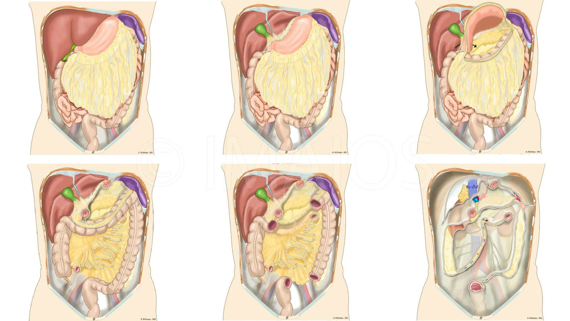 hight resolution of peritoneal cavity root of mesentery mesocolon lesser omentum greater omentum omental