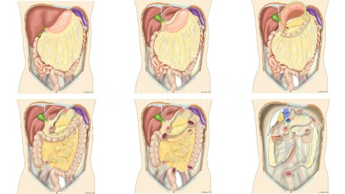 small resolution of peritoneal cavity root of mesentery mesocolon lesser omentum greater omentum omental