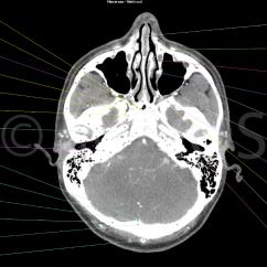 Human Skull Landmarks Diagram Audi Tt Window Motor Wiring Scanner De La Tête Et Du Cou