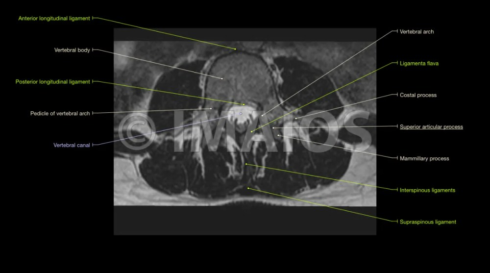medium resolution of lumbar spine anatomy on mri magnetic resonance imaging eye anatomy labeling printable diagram of the eye