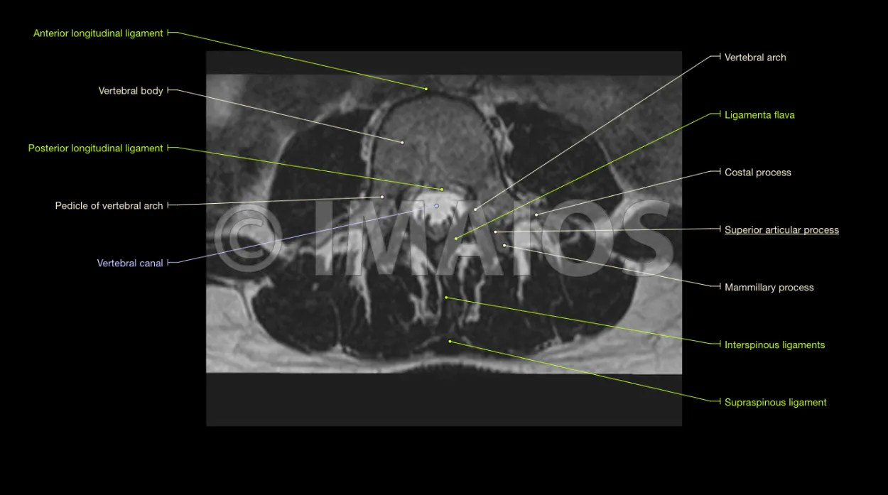 hight resolution of lumbar spine anatomy on mri magnetic resonance imaging eye anatomy labeling printable diagram of the eye