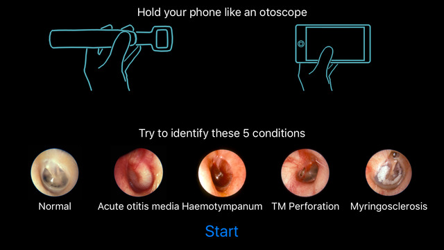 Otoscope Simulator App Review Makes IPhone Into Virtual