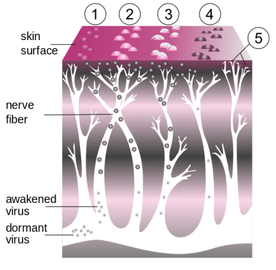 How the zoster virus causes shingles in the skin