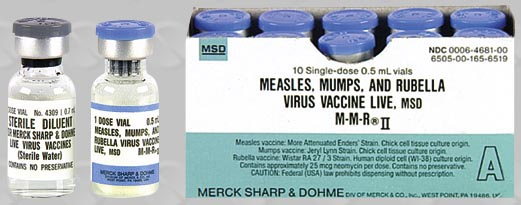 Image result for measles mumps rubella vaccine side effects