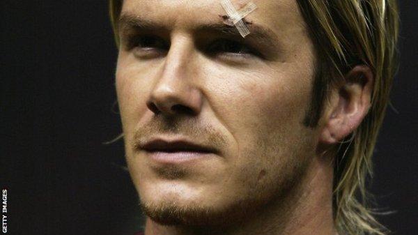 Beckham e o machucado após a discussão com Ferguson.