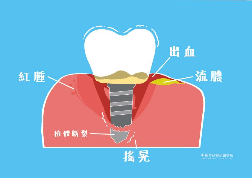 植體周圍炎怎麼預防?植牙完後還會得牙周病嗎? - 品御牙醫診療室
