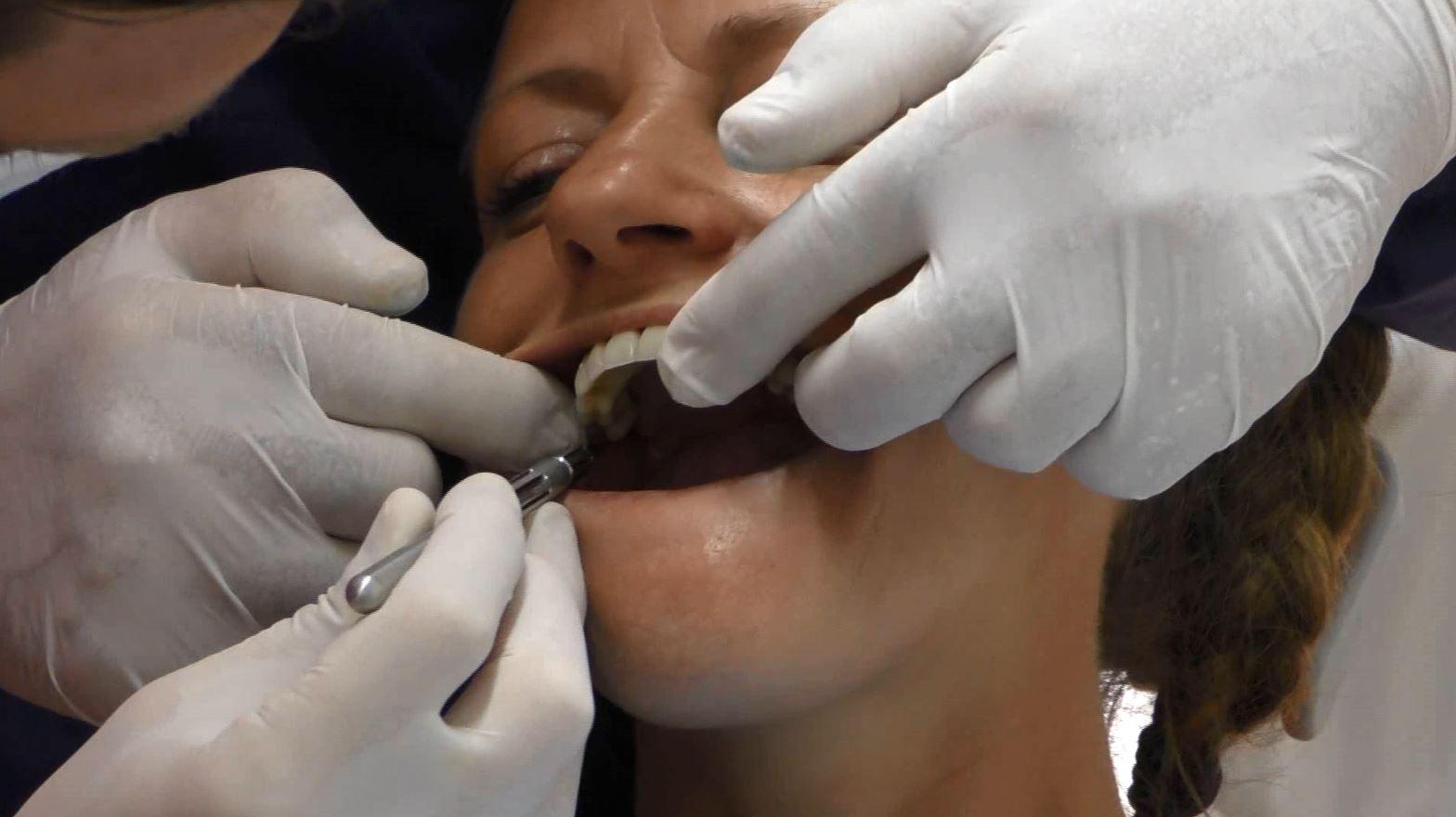 denti fissi senza impianto costo ,implantologia poco osso prezzi ,impianto osseo dentale prezzi ,implantologia a carico immediato senza osso ,impianto dentale con poco osso ,impianti dentali senza osso costi ,quando non si può fare un impianto dentale