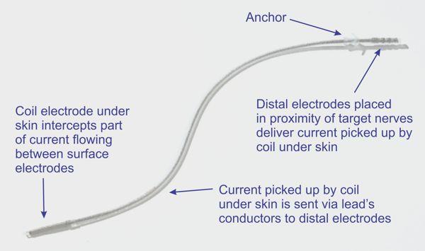 Bioness' StimRouter implantable neurostimulator.  www.implantable-device.com  David Prutchi PhD