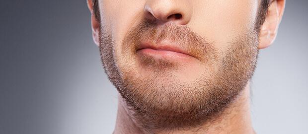 clinica-de-implante-de-barba