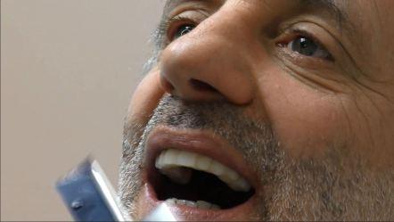implantologia dentale senza osso