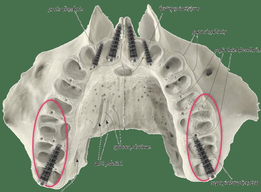 implantologia poco osso immagini di soluzioni dentali fisse