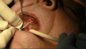 impianti dentali quando manca osso
