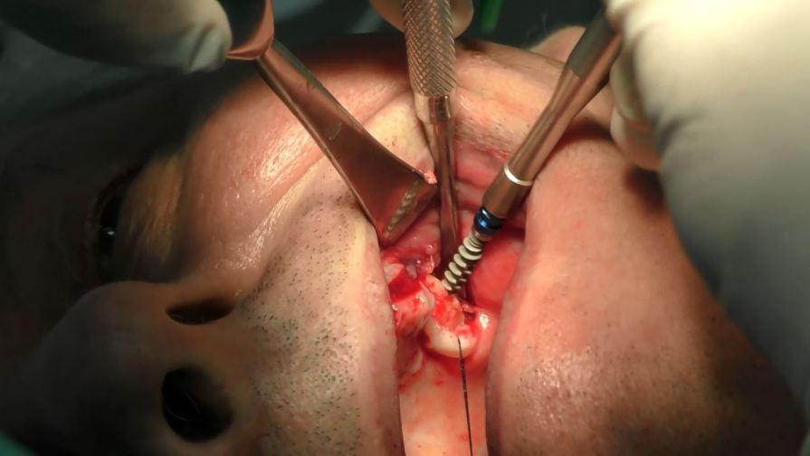 Impianti dentali arcata superiore con poco osso