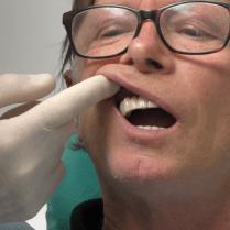 implantologia senza finta gengiva