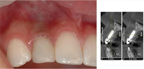 Penggunaan Implan Gigi Aman- Global Estetik Dental Care
