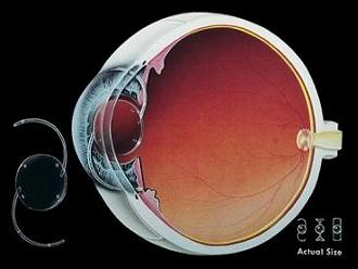 Intraocular Lens The Different Types And Things To Consider