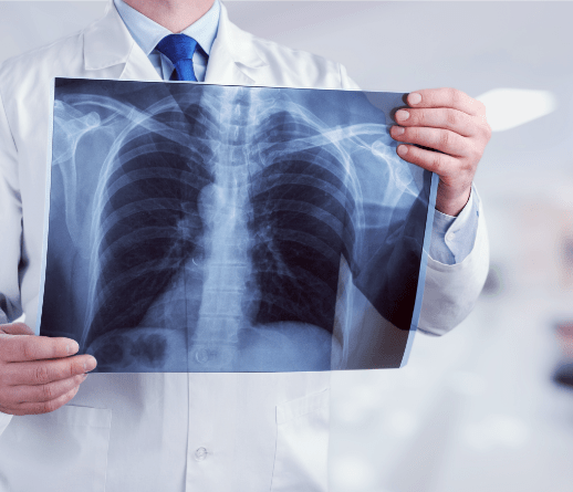 xray of chest being held up in front of someone's chest