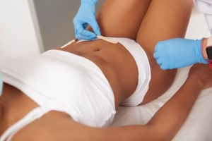 african american woman getting hair removal treatment 118628 2161