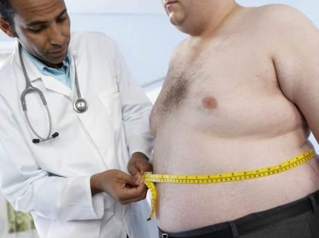 obesityman