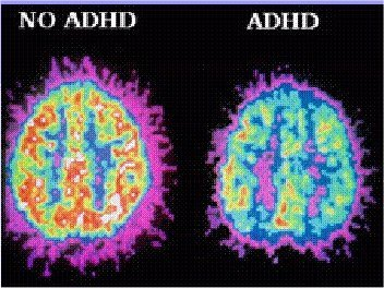 attention deficit disorder add adhd Attention Deficit Hyperactivity Disorder