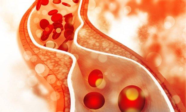 Sfârșitul Erei Colesterolului
