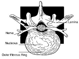 Percutaneous Endoscopic Lumbar Discectomy Surgery India