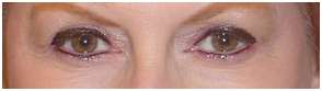 Permanent Makeup India Cost Hospital Low Treatment Delhi