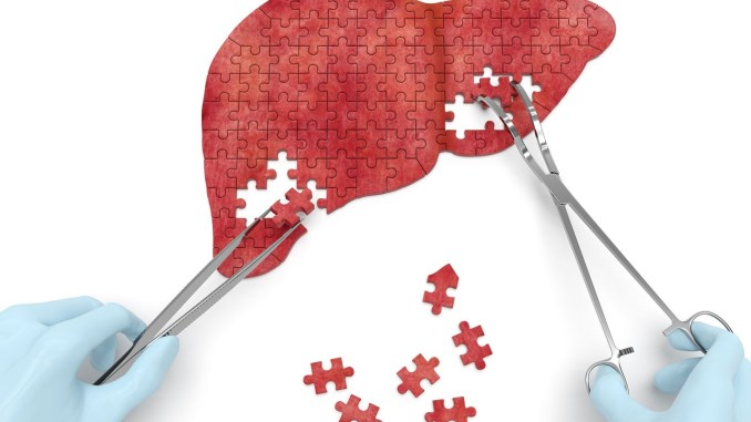 New insights on liver injury in men taking body