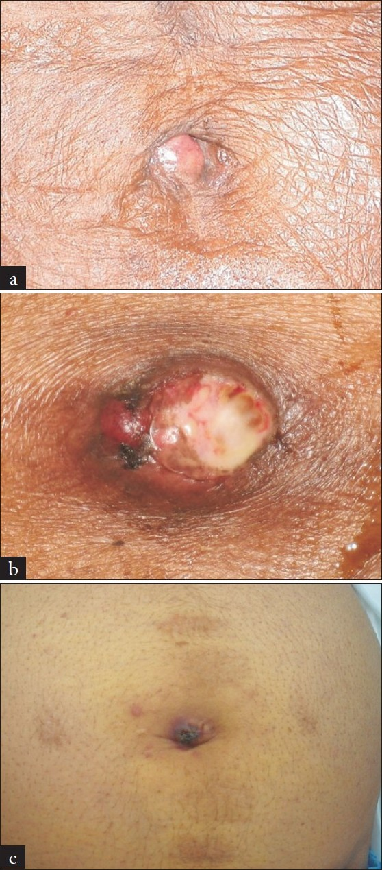 Figure 1 :(a-c) Three cases of SMJN showing typical umbilical metastatic nodules