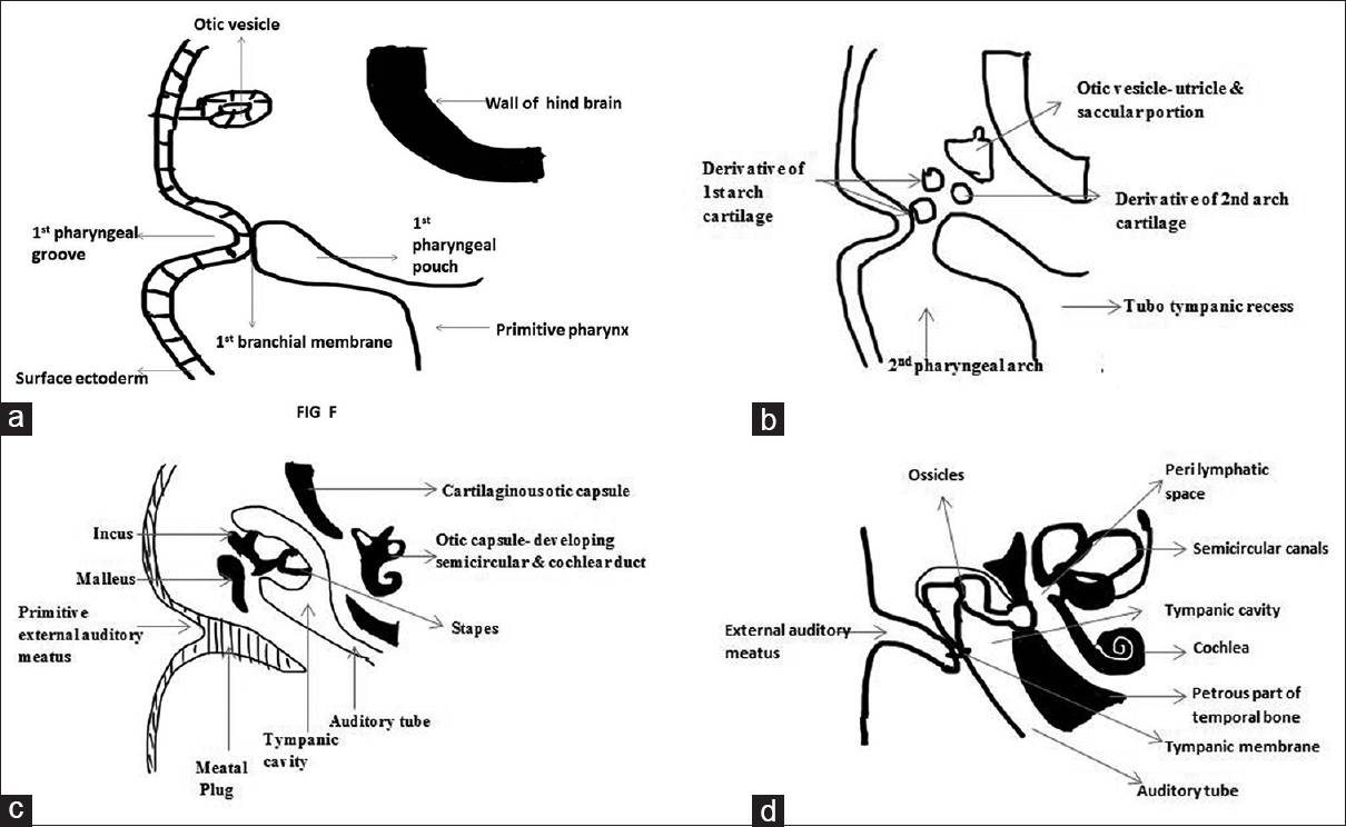 hight resolution of figure 2 schematic representation of stages in the formation of external and middle ear a relationship of first pharyngeal groove with first pharyngeal