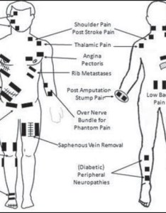 Transcutaneous electrical nerve stimulation tens  potential intervention for pain management in india banerjee  johnson mi indian  also rh indianjpain