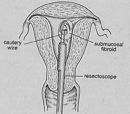 Myomectomy India,Myomectomy Surgery India,Uterus Fibroid