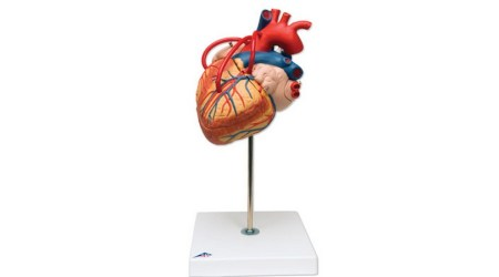 Classic heart with bypass; 2 part