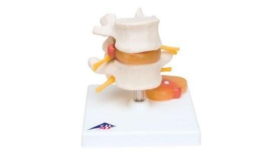 Lumbar Spinal Column With Prolapsed Intervertebral Disc